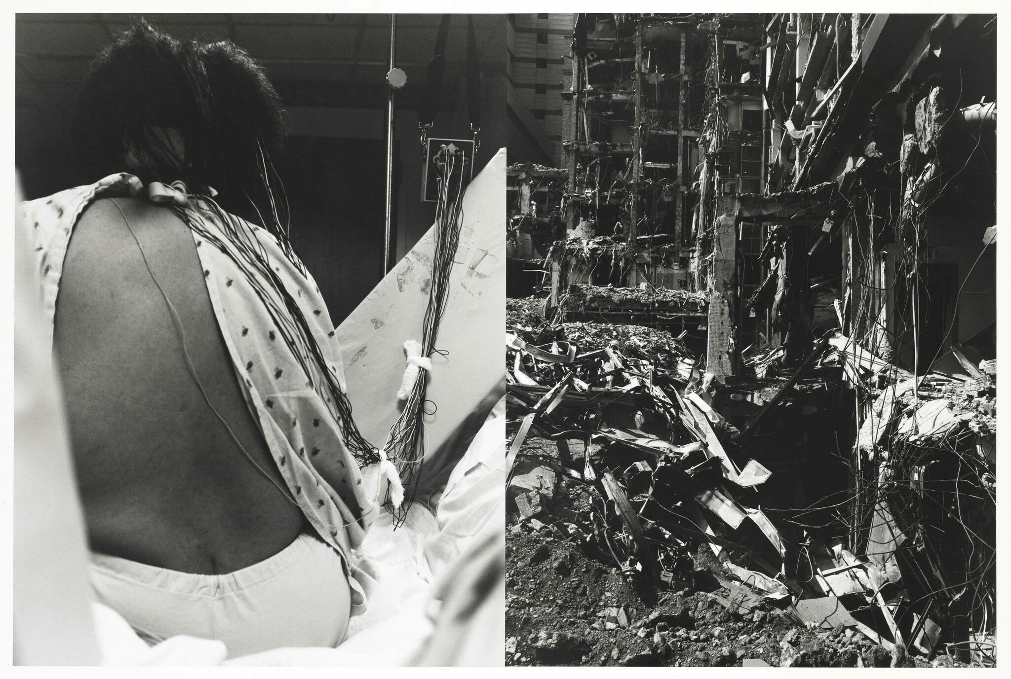 A black and white photo of a woman in a hospital bed her gown exposing her back, adjacent, a building in ruins.