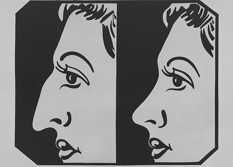 A drawing of a side profile of a woman before and after a nose surgery.